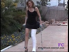 cast leg and walking on cruches