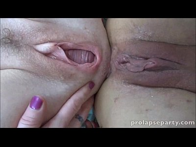 Mash and prolapse play