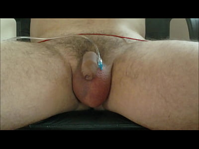 First,Cbt,Saline,Inflation,Infusion,Scrotal