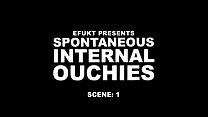 Ouchies on Scenes preview image