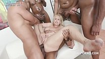 Psycho Doctor #1 Angel Wicky Anal therapy with Deep Fucking, Squirt, Gapes, Creampie GIO1104 thumbnail