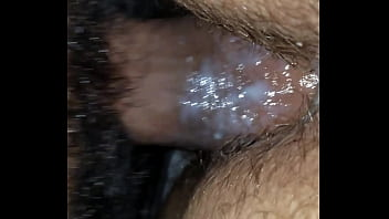 Hairy cell leukemia viral infection Pregnant creamy fuck