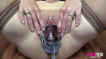 Upskirt cervix - Fetish freak scene cervix exam with a xxl sakura speculum