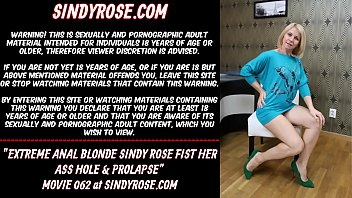 Extreme anal blonde Sindy Rose fist her ass hole & prolapse