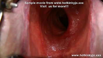 Extreme anal exploration with gigantic speculum in HKJ ass. Also bellybulge from deep dildo.