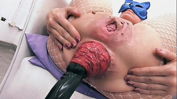 Most Incredible Prolapse Scene! Cervix, Fisting...