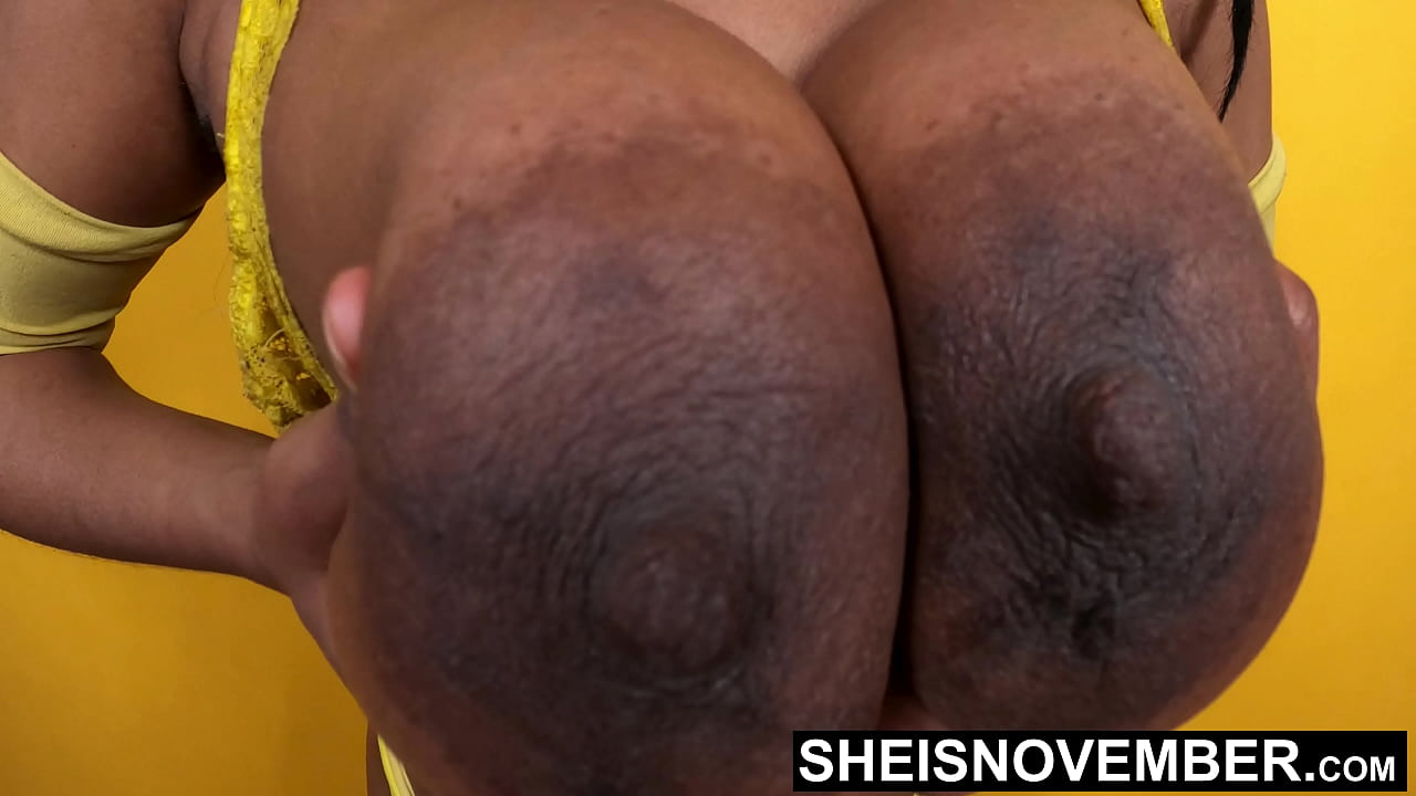 Pics areolas AREOLA PICTURE